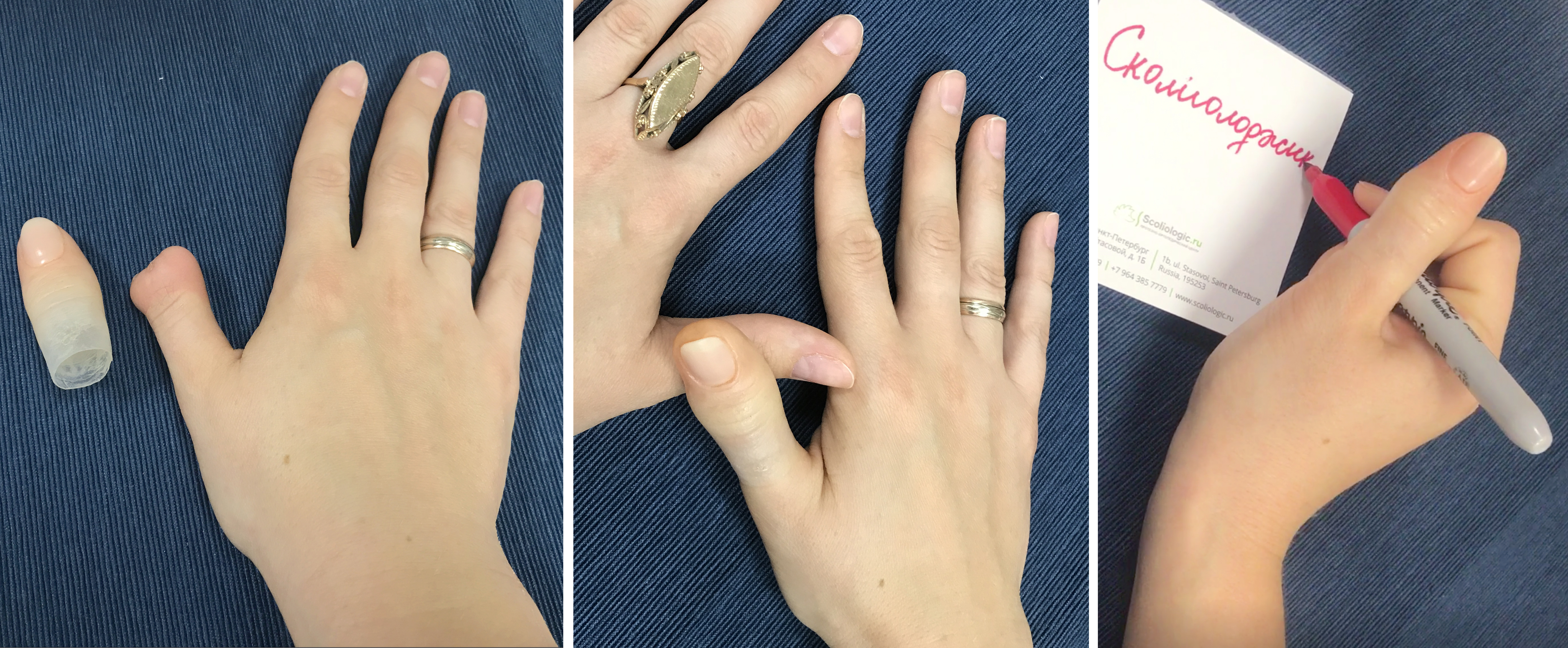 протез пальца