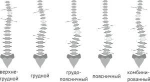 Виды сколиоза